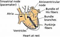 vascular_017